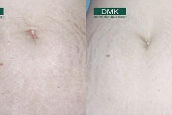 DMK Skin Revision Helsinki